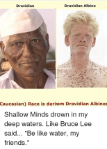 dravidian-albino-dravidian-caucasian-race-is-deriom-dravidian-albinos-shallow-13464085